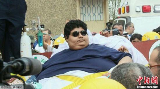 沙特610公斤男子惊动国王 后者下令医院助其减肥