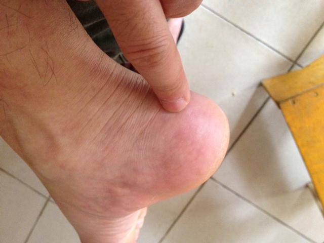 脚后跟肿痛 或是强直性脊柱炎