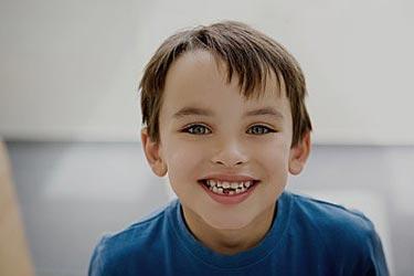 孩子换牙前出现蛀牙必须治