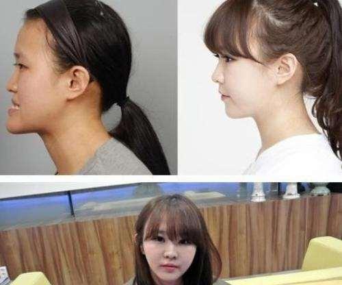 韩国整容节目过热背后 女子参加整形后不久意外死亡