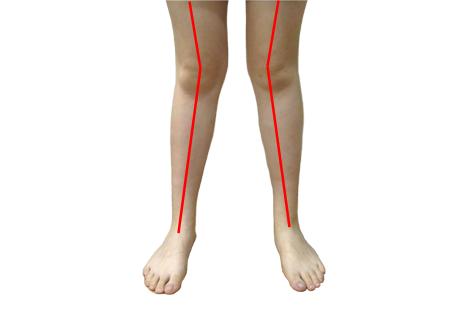 人未老腿先老 罗圈腿的膝关节容易提前报废