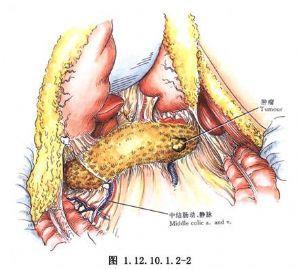 广西完成中国首例胰岛细胞瘤微创治疗