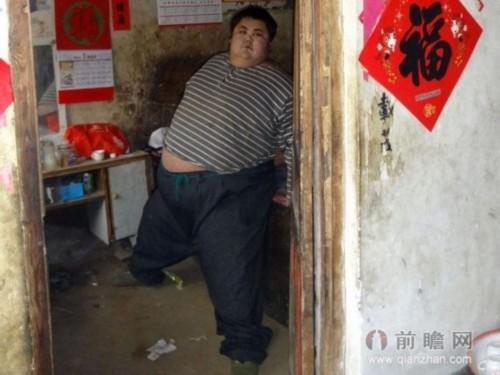 中国第一胖心肺衰竭离世 体重600斤身体不堪重负