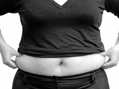 """女子腰围变大竟是""""怀""""了20斤肌瘤"""