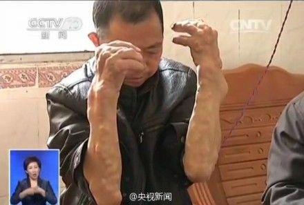 广西村庄重金属污染致村民手脚畸形