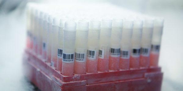 免疫细胞存起来 能否抓住青春的尾巴