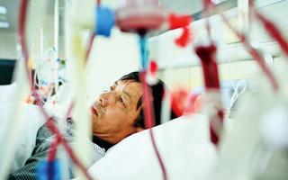 招募尿毒症期需动静脉造瘘患者
