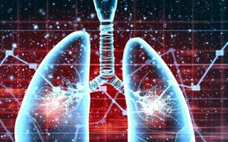 精准治疗肺癌10年有望再延长患者生存期