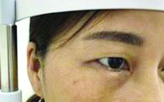 在深圳华厦眼科医院感受国际最先进微创无痛玻璃体手术