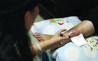 6旬老太理疗时被烫伤 入院治疗花了十几万