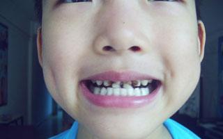 深圳小学生6成有烂牙 没有掌握正确刷牙方法