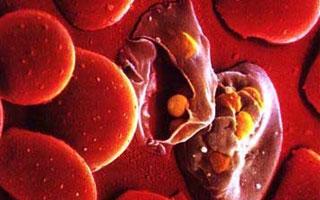 """""""中国神药""""在多个医学领域显身手 青蒿素有望治疗1型糖尿病"""