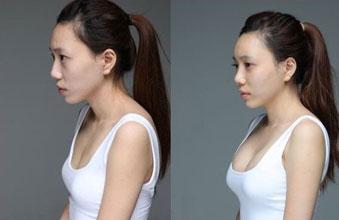 """脂肪移植风险大 美容可能变""""丑容"""""""